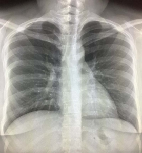 lung nodule on chest x ray