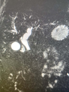 Dilated bile ducts on MRI